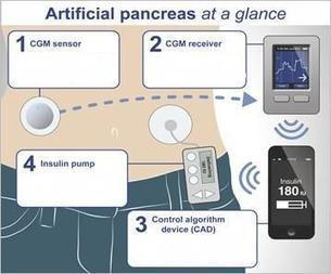 News & Analysis - Artificial Pancreas Dials Up Smartphones | EE Times | diabetes and more | Scoop.it