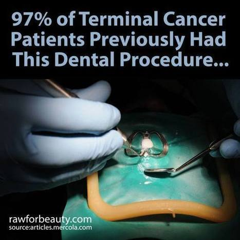 97% of Terminal Cancer Patients Previously Had This Dental Procedure… | RAW FOR BEAUTY | Heal the world | Scoop.it