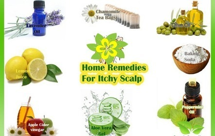 Natural Remedies to Dandruff and Itchy Scalp | Dandruff | Scoop.it