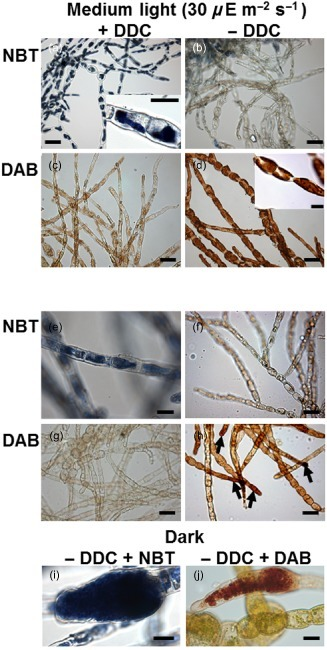 Infection of the brown alga Ectocarpus siliculosus by the oomycete Eurychasma dicksonii induces oxidative stress and halogen metabolism - Plant, Cell & Environment - | Plant-Microbe Interaction | Scoop.it