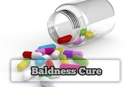 Avoid Baldness Take Vitamins for Hair Loss in Women | Baldness Cure | Scoop.it