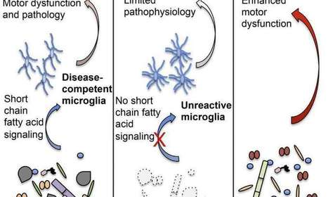 Parkinson's disease linked to microbiome | Health , Preventive  health | Scoop.it