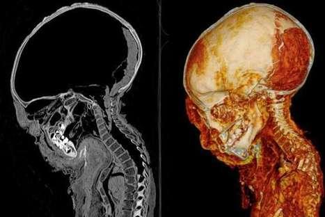 La première momie passée aux rayons X révèle enfin ses secrets | Détective de l'étrange | Scoop.it