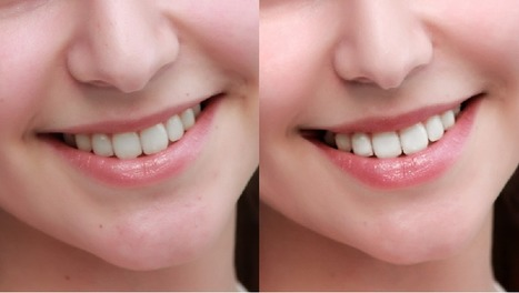 Whiten and brighten teeth with Portrait Professional's photo editing software | Portrait Professional | Scoop.it