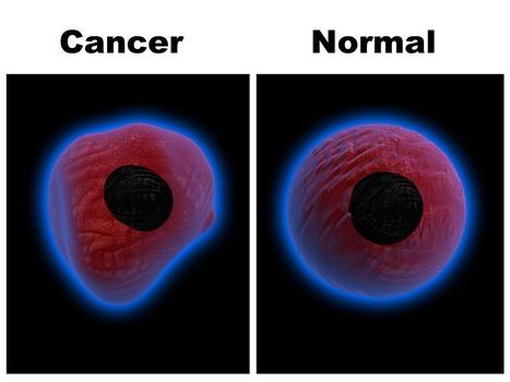 CANCAER Care medicine : Cancer treatmetn medicine at healtcare247.co | Buy Votrient Anti cancer medicine online | Scoop.it