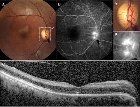 Early Onset of Ocular Neovascularization After Hyperbaric Oxygen Therapy in a Patient With Central Retinal Artery Occlusion | Macular Degeneration | Scoop.it