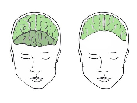After Brain Injury: The Dark Side of Personality Change | Psychology and Brain News | Scoop.it