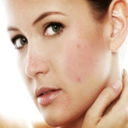 A Clinically Proven Medicine To Act Against Acne And Dark Spots | Online-pharmacy | Scoop.it