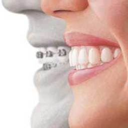 Odontología Preventiva y Comunitaria - Alianza Superior | Odontología Preventiva y Comunitaria | Scoop.it