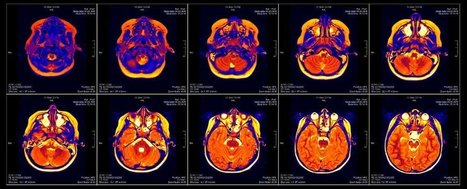 A bug in fMRI software could invalidate 15 years of brain research | The future of medicine and health | Scoop.it