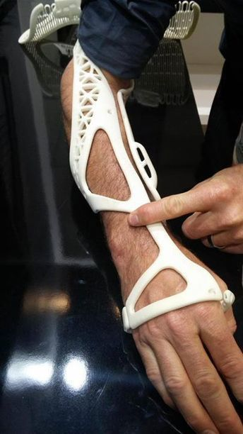 Plaster Casts On A Broken Limb In 2016? Please Print Out Mine! | tecnologia s sustentabilidade | Scoop.it