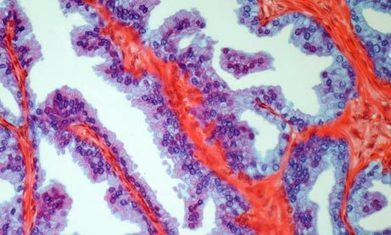 Scientists unravel genetic causes of prostate, breast and ovarian cancer