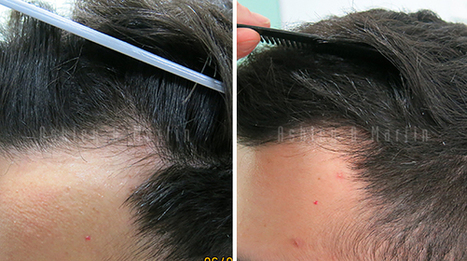 Case Study: 19 Year Old Seeks Hair Loss Help | Ashley and Martin | Hair Regrowth | Scoop.it