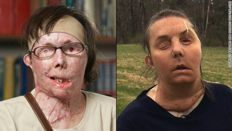 Face transplant recipient's goal: A kiss | Government And Law Scoops | Scoop.it