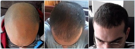 The Advanced Hair Transplantation in Turkey by Cevre Health Tourism | Hair Transplantation Turkey | Scoop.it