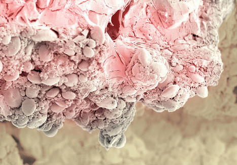 An Electron Microscope Reveals The Hidden Horrors Of Processed Foods   On the Plate   Scoop.it