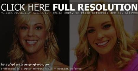 Kate Gosselin Plastic Surgery Before and After Pictures 2014 | Plastic Surgery Before and After Photos | Scoop.it