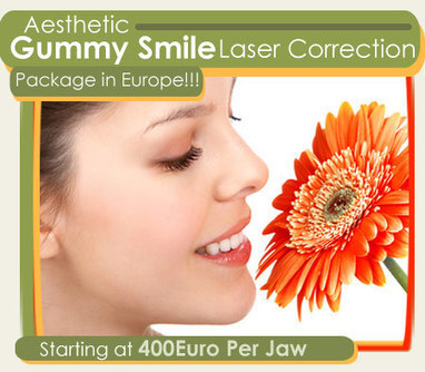 What is Gummy Smile Laser Correction? | Beauty & Health Resources | Scoop.it