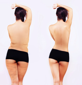 Kessler Plastic Surgery Discusses About Liposuction Safety | Newport Beach Plastic Surgery | Scoop.it