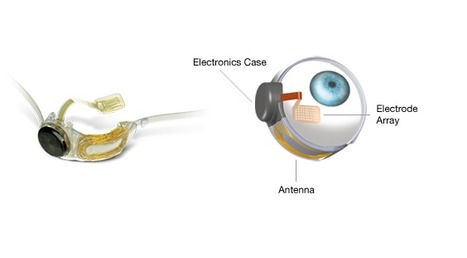 Second sight's Argus® II Designed To Produce Sight   Medical Engineering = MEDINEERING   Scoop.it