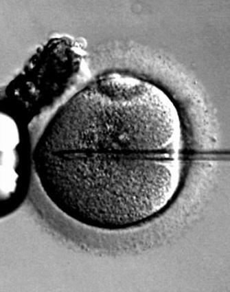In Vitro Fertilization (IVF) Failures - Babywoop.com | Pregnancy Problems and Treatment | Scoop.it