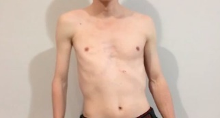 MULTIMEDIA: Male body image and how one man overcame his injury | Ryerson Journalism: JRN112 Top Content | Scoop.it