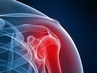 Premier Orthopedic Solutions - YouTube | Carl Bax | Scoop.it