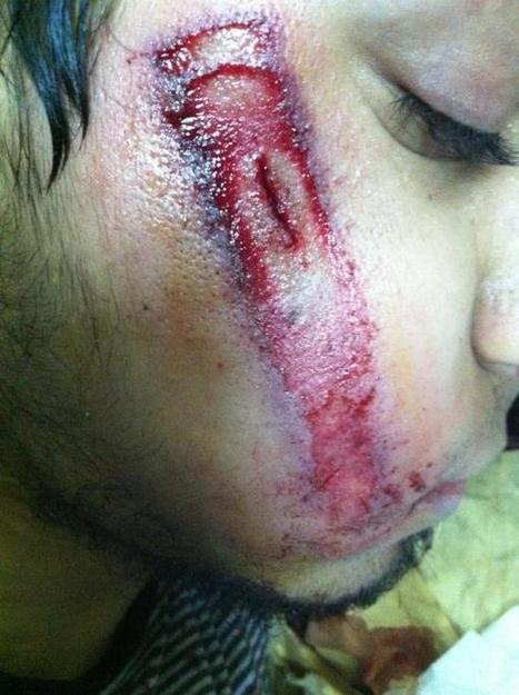Man shot Directly  in the face with teargas canister  in Diraz, Bahrain   Human Rights and the Will to be free   Scoop.it