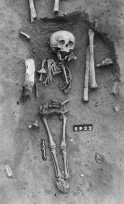 Oldest case of Down's syndrome from medieval France - life - 04 July 2014 - New Scientist | Convention on the Rights of Persons with Disabilities | Scoop.it