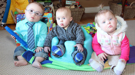 Hoping for acceptance: Association sees spike in Down Syndrome births | Orthopédie pédiatrique | Scoop.it