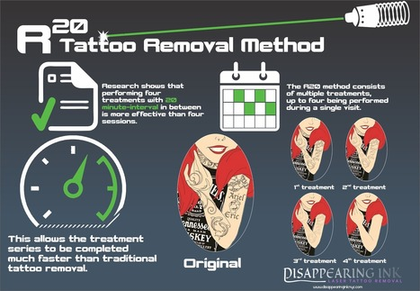 Tattoo Removal in New York City: R20 Method: The Greatest Promise of Laser Tattoo Removal | Healthcare Marketing | Scoop.it