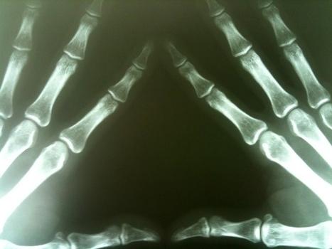 Brainy bones: the hidden complexity inside your skeleton | Emergence | Scoop.it