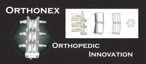 China Orthopedic Devices Industry 2014, Global Industry Analysis, Size, Share, Growth, Trends And Forecast ~ Global And China Industry 2014 | Market Research | Scoop.it