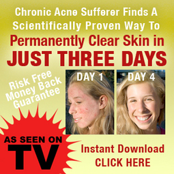 Pimples   Acne Home Remedies   Home made Pimple Treatment   Home Remedies For Acne   Pimple Treatment   Scoop.it
