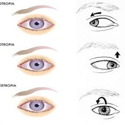 What is Nystagmus: types, causes, symptoms and treatment? | vision therapy | Scoop.it