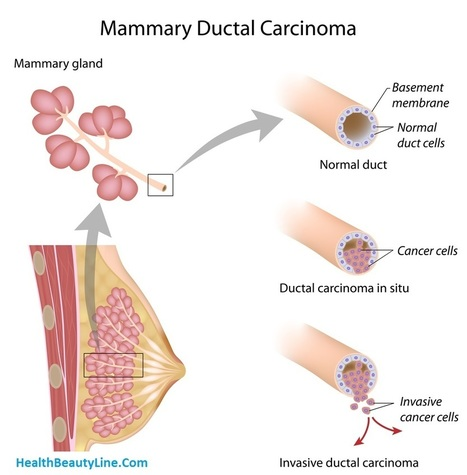 DCIS - Ductal Carcinoma In Situ Symptoms and Treatments - Daily Health and Beauty Tips and Guide | My Scoops | Scoop.it