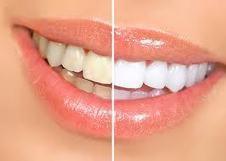 Blanqueador de dientes de forma natural y casera   Blanqueador de dientes   Scoop.it