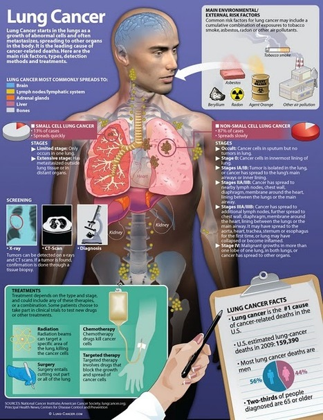 The World of Infographic Insights: Lung Cancer : Treatments and Causes | Alcohol and Other Drug Infographics | Scoop.it