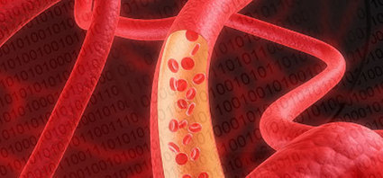 Numerical Simulation of Blood Flow in Flexible Arteries Using Fluid-Structure Interaction | Applying Finite Element Analysis and Computational Fluid Dynamics | Scoop.it