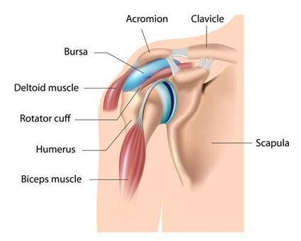 How flexoprin helps in treating bursitis? | Joints Supplement | Flexoprin-How reduce the joint pain | Scoop.it