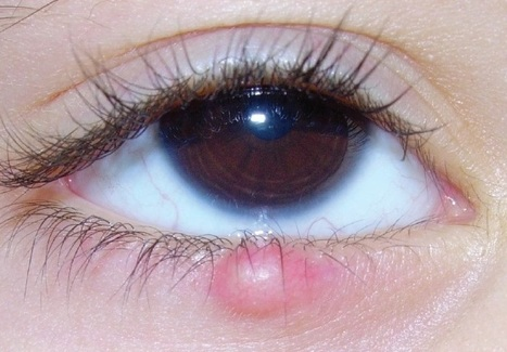 Profile of Cytokines (IL-1β, TNF- α and IL-10) in Eyelid Tumors | Journal of Case Reports and Studies | Open Access Journals | Annex Publishers | Annex News | Scoop.it