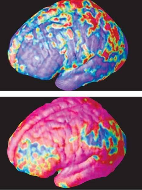 Scientists shocked to find antibiotics alleviate symptoms of schizophrenia | Clinical Psychology | Scoop.it
