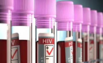 RAZONES PARA NO HACERTE EL TEST DE VIH (Manuel Garrido Sotelo) | Superando el Sida | Scoop.it