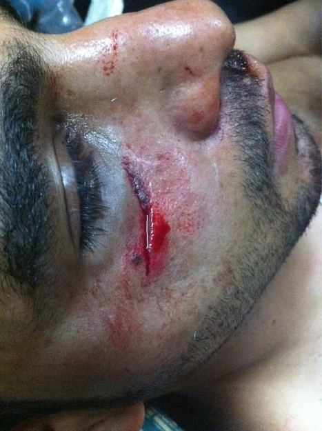 Injury suffered by protester in Sitra after the Martyr's funeral. | Human Rights and the Will to be free | Scoop.it
