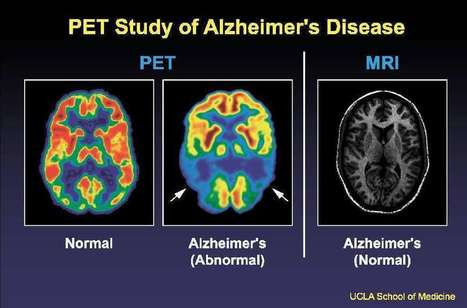 Could a blast of sonic waves restore memory lost to Alzheimer's disease? | This Week in Alzheimer's News | Scoop.it
