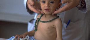 UNICEF - Goal: Reduce child mortality   Child Mortality   Scoop.it