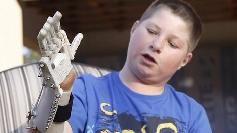 Amputee Richard Van As creates mechanical hand | 3Dprinting | Scoop.it