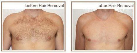 Best clinics for laser hair treatment in Sydney   facialrejuvenation   Scoop.it