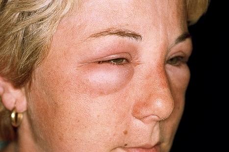 холодовая аллергия на лице