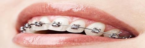 Ortodonti Uzmanı Dr. Canan Çolak Bursa Ortodontist | ortodonti hakkında sss | Scoop.it